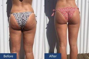 Cellulite Before After Back View