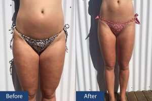 Cellulite Before After Front View