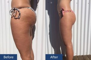 Cellulite Before After Left View